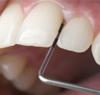 Vorsorge mit Parodontosebehandlung für Erwachsene und Kinder