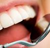 Schöne gesunde Zähne durch Prophylaxe